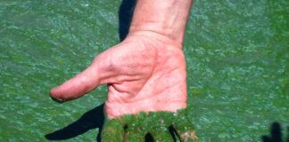 Blue-Green Algae in a Lake
